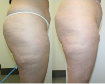 Results of lymphatic drainage treatment 1